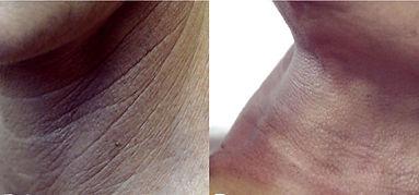 collo ringiovanimento il collo si ringiovanisce con la medicina estetica di alta specializzazione, metodica del Dott. Emilio Betti