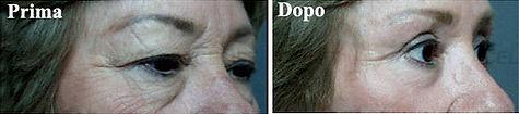 chirurgia estetica della palpebra, blefaroplastica donna, blefaroplastica, blefaroplastica viareggio, blefaroplastica lucca, dermoestetica italiana, medicina estetica viareggio, dott. emilio betti