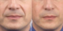 trattamento idrossiapatite di calcio, ringiovanimento volto uomo, trattamento anti age, elimina le rughe sul volto
