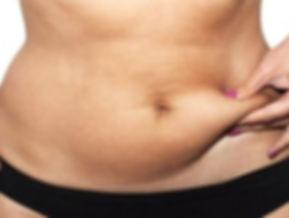 addominoplastica, addominoplastica donna, rimuove il grasso in eccesso, tessuto cutaneo addominale in eccesso, addominoplastica viareggio, dermoestetica italiana, medicina estetica viareggio, dott. emilio betti
