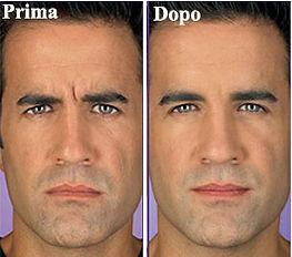 botulino uomo, botox uomo, rughe donna, rughe fronte, botulino fronte, botox fronte