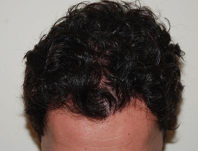 Trapianto di capelli monobulbare Dopo, Dermatologo Dott. Emilio Betti La Spezia