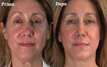 trattamento ialuronico viso donna