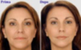 volto donna acido ialuronico