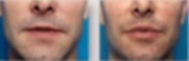labbr uomo, rimodellamento labbra con ialuronico, ialuronico, aumento volume labbra, aumento labbra con ialuronico