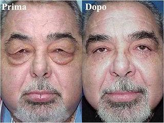 blefaroplastica uomo, palpebre cadenti uomo, chirugia estetica delle palpebre