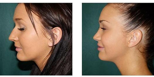 rinoplastica, chirurgia estetica del naso, rinoplastica donna, rinoplastica viareggio, rinoplastica lucca, dermoestetica italiana, dott. emilio betti, medicina e chirurgia estetica viareggio