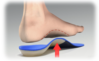 How To Know When It's Time To Invest In Orthotics.