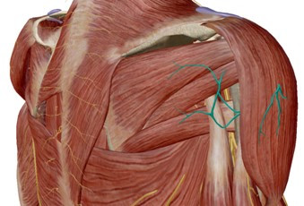 shoulder pain caused by nerve adhesions