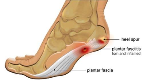Plantar fasciitis leading to heel spur formation