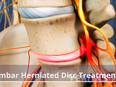 Which Disc Injury Treatment Is Best For YOU?