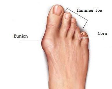Foot-Deformity-Repair.jpg