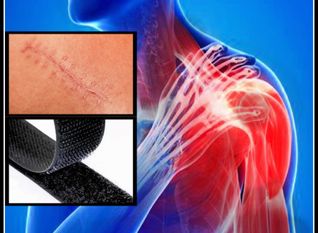 """Velcro? The """"Fuzz""""? What In The World Is This """"Scar Tissue"""" That's Causing Your Pain?!"""