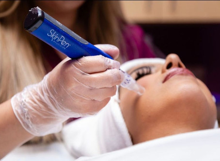✨ Microneedling with SkinPen