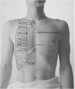 נקודת הדיקור כליות25 מחסן השן/נפש:לכסות את האור