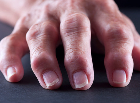 Acupuncture effective for Rheumatoid Arthritis