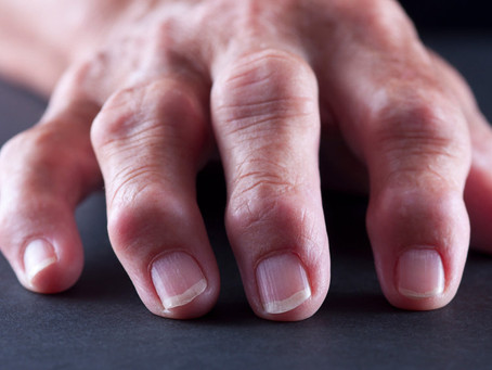 Acupuncture effective for Rheumatoid Arthritis