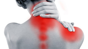 Cupping for Neck & Shoulder Pain