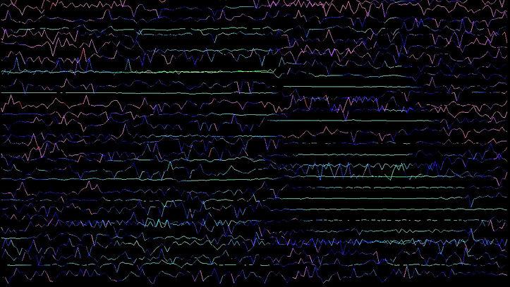 Spektralanalyse_unscharf ist schoen