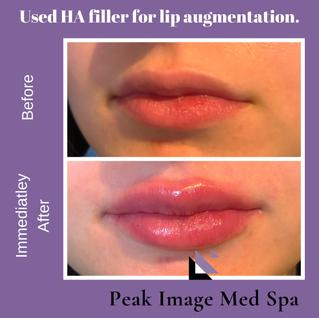 Lip Filler.PNG