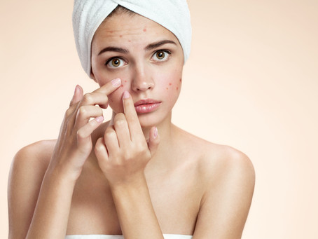 Do Pimples form over night?