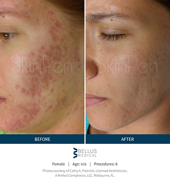 Skin Pen acne scar before and after2.png