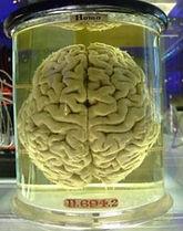 474px-human-brain_257.jpg