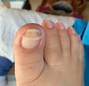 Onyfix is holding the nail in its natural shape as it grows out and prevents ingrown nail curvature.