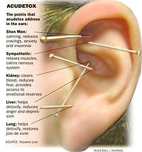 Acu-detox Poster.jpg