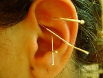 Auricular Acupuncture a proven method for safe detoxification from alcohol/drugs and other addictive