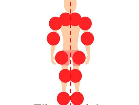 Osteopathy and Fibromyalgia