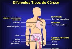 tipos_de_cancer.jpg