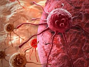8 cosas que detonan cáncer