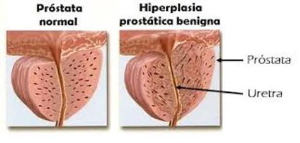 Aproveche los orgasmos de próstata