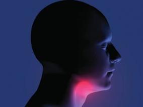 El cáncer de garganta relacionado con el VPH aumenta entre los hombres
