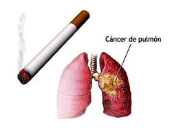 Cáncer-pulmonar-2.jpg