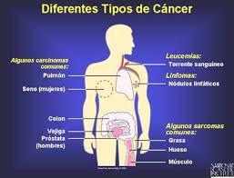 CAUSAS DE CANCER Y SUS DIFERENTES TIPOS