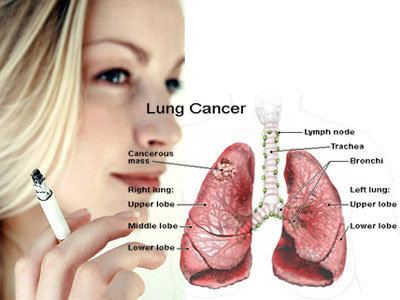 Lung-Cancer-in-Women.jpg