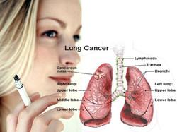 Lung-Cancer-in-Women.jpg