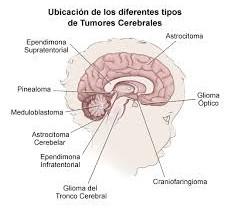 Glioma del tronco encefálico - sistema nervioso central - tumor infantil - Panorama general
