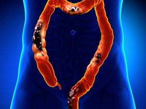 La colonoscopía virtual – otra opción para la detección del cáncer de colon