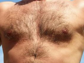 Cáncer de mama en los hombres, ¿hay factores que mejoran los resultados?