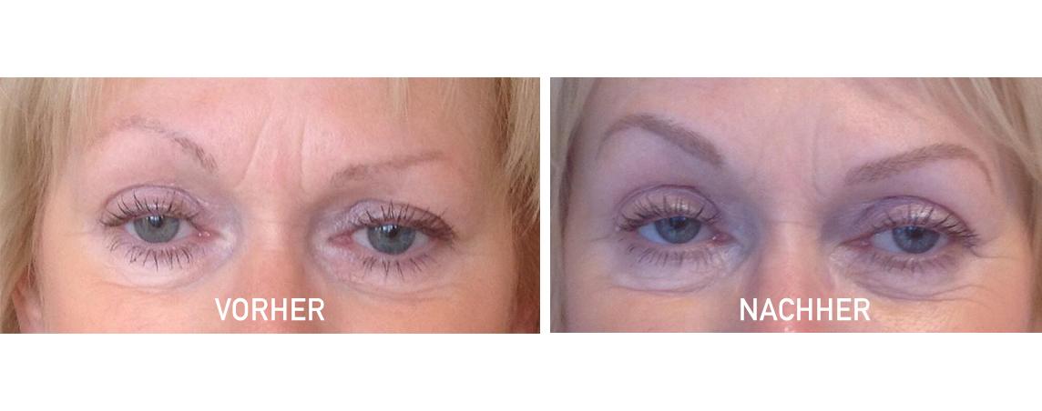 Augenbrauen - Härchenzeichnung