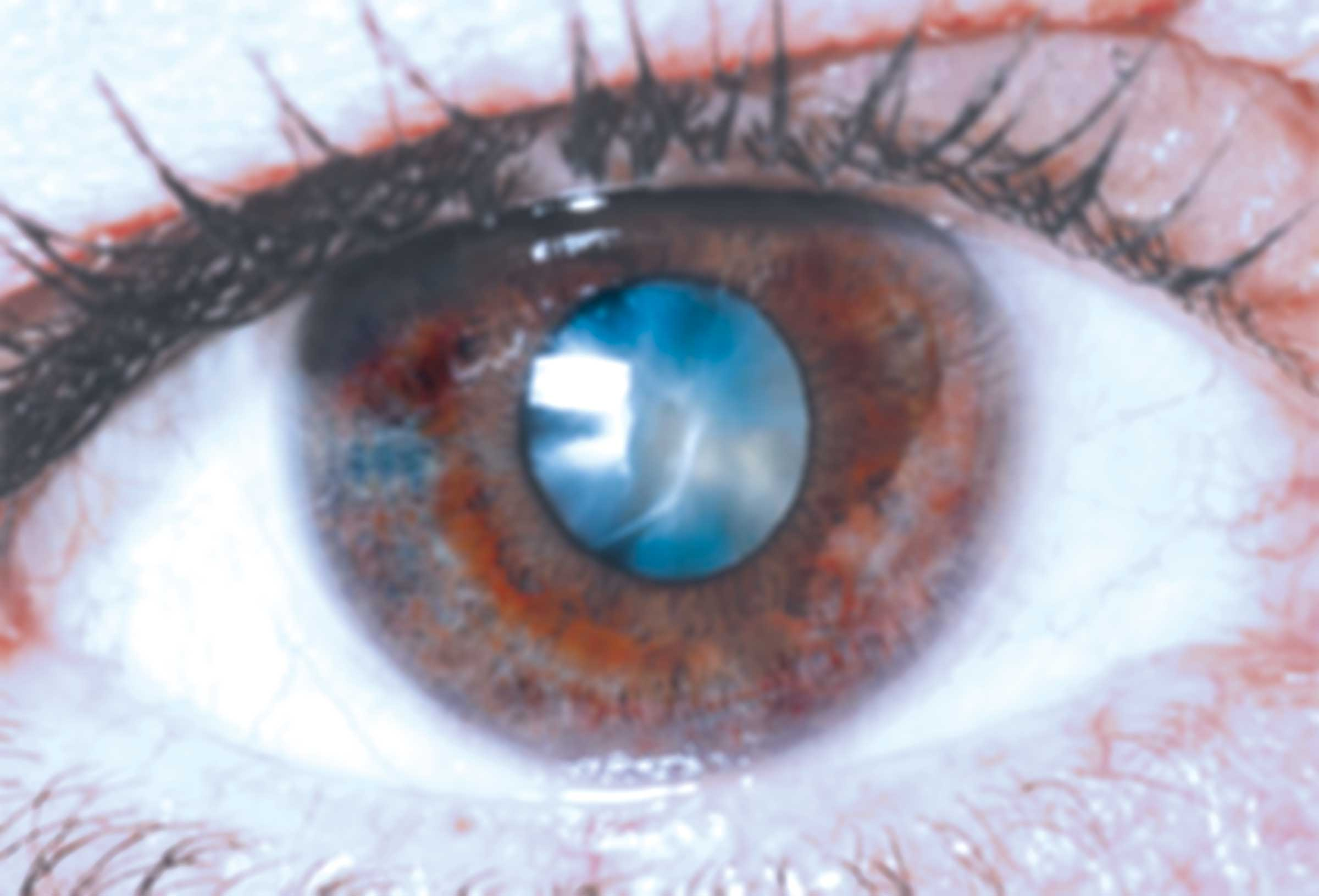 Perfecting Cataract Surgery At Asian Eye Institute   Voice Of The South News