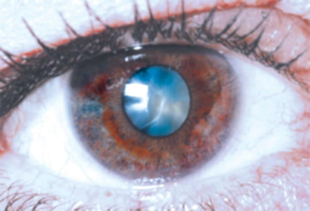 asian eye institute, cataracts