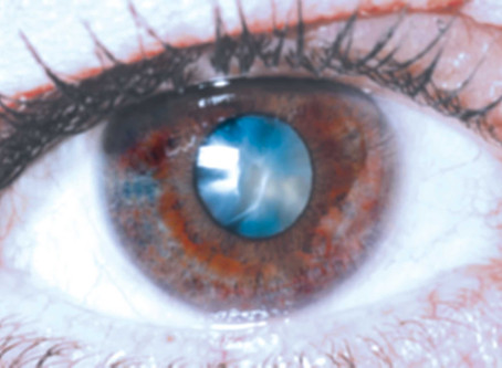 Perfecting Cataract Surgery at Asian Eye Institute