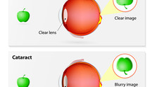 Cataract Vs Glaucoma