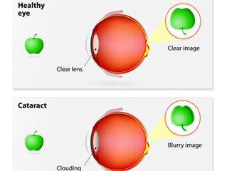 Cataract Vs Glaucoma