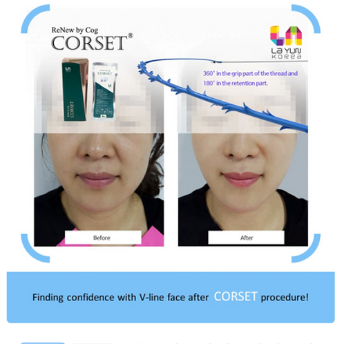 PDO Thread_Renew by Cog Corset