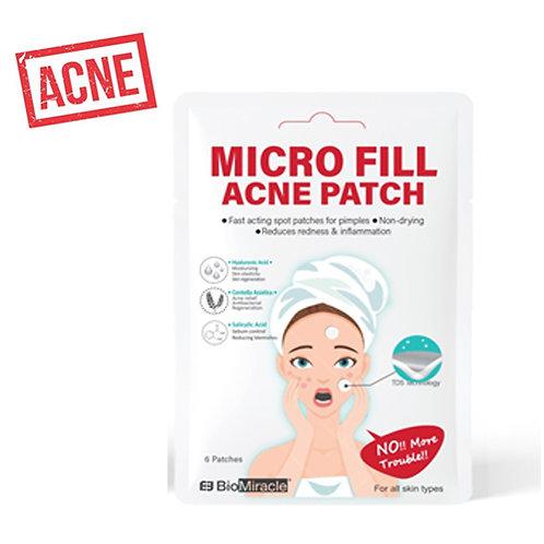 Micro Fill Spot Patch
